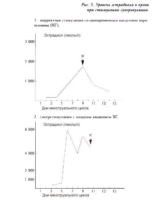 Схема стимуляции гонадотропином